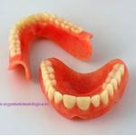 proteze dentare.jpg